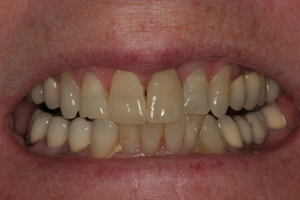 tender dental care clacton after crown