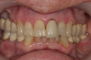 tender dental care clacton crown before