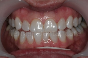 tender_dental care clacton essex after whitening