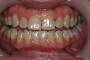 tender_dental care clacton essex before whitening