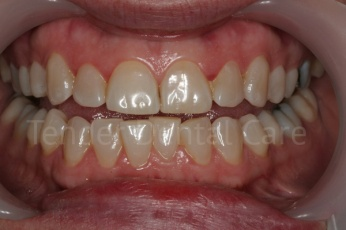tender_dental care clacton essex before whitening